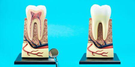tooth anatomy on blue background. Stockfoto - 132107783