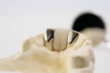 Closeup  Dental maryland bridge  Crown and bridge equipment and model express fix restoration.