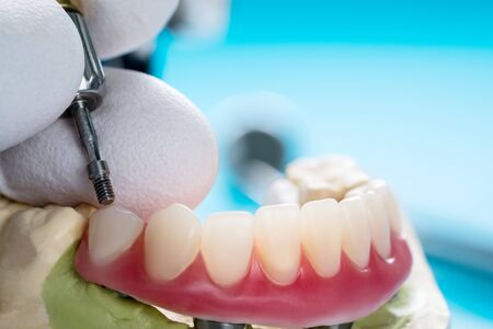 Closeup/ Dental implants supported overdenture on blue background/ Screw retained/ implant restorations. 스톡 콘텐츠 - 133205329