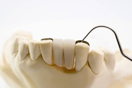 Closeup  Dental maryland bridge  Crown and bridge equipment and model express fix restoration.