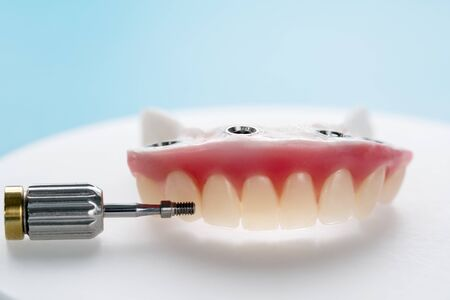Closeup Dental implants supported overdenture on blue background Screw retained implant restorations. Stock Photo