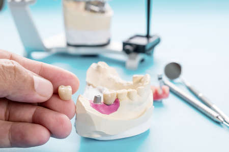 Implant Prosthodontics or Prosthetic / Tooth crown and bridge implant dentistry equipment and model express fix restoration. Stock Photo
