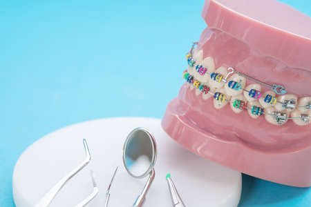Dentistry medical tools forcept on blue background. 版權商用圖片