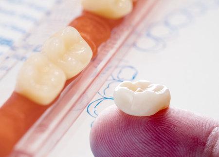 Dentistry medical tools forcept upper/ lower on gray background. 版權商用圖片