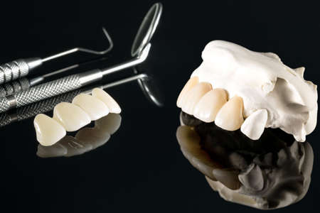 Closeup / Prosthodontics or Prosthetic / Tooth crown and bridge implant dentistry equipment and model express fix restoration.