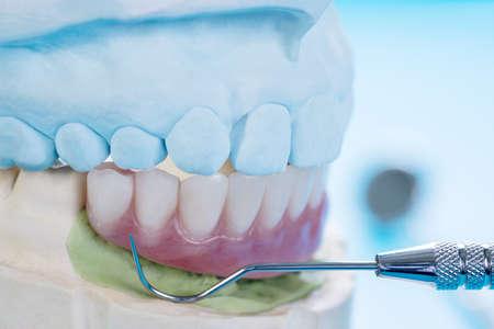 Dentistry medical tools forcept upper/ lower on blue background.