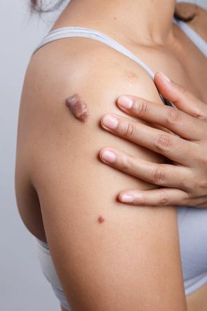 Scar on human skin, keloid on shoulder Stock Photo