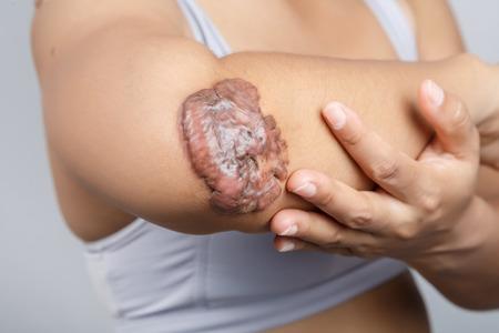 scar: Scar on human skin, keloid on elbow