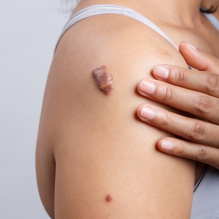 scar: Scar on human skin, keloid on shoulder Stock Photo