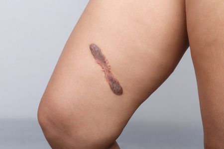 surgical removal: Scar on human skin, keloid on thigh