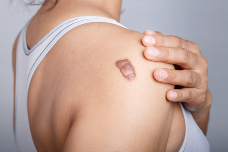 surgical removal: Scar on human skin, keloid on shoulder Stock Photo