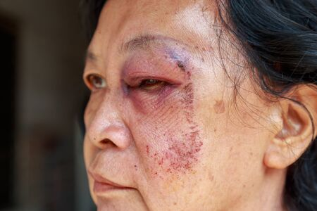She is asia elderly woman. Her injury to the eyelid swelling from an accident or abused.