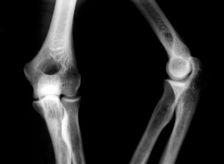 broken knee: X-Ray picture of knees front and side view Stock Photo