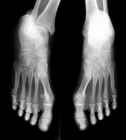 radiation therapy: Foot fingers exposed on x-ray black and white film Stock Photo