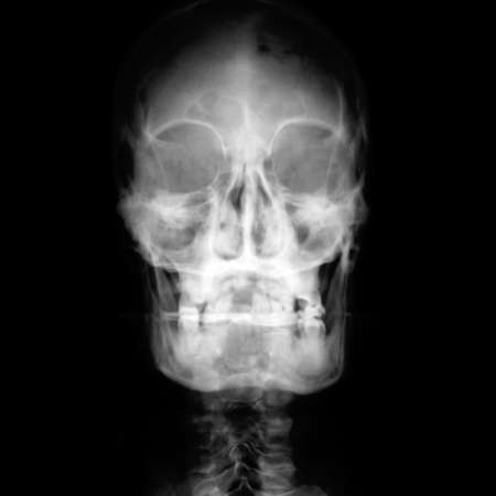 Front face on X-ray film