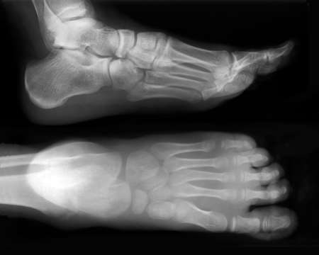 Foot fingers exposed on x-ray black and white film Stock Photo