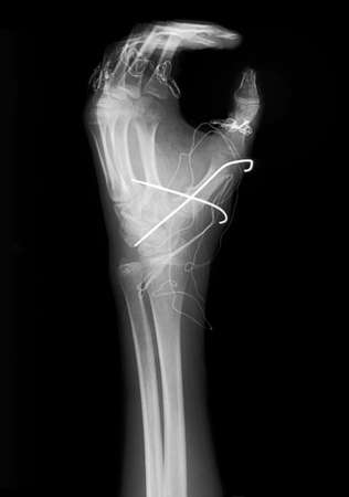 radiogram: Fixed fist on x-ray film