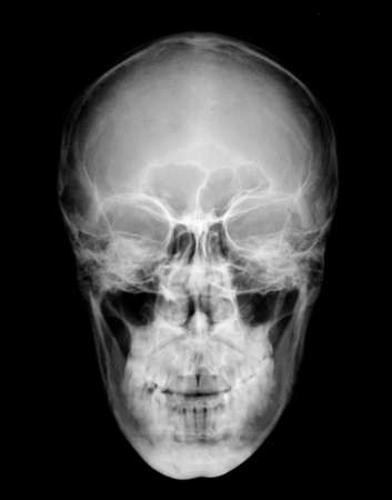radiological: Front view of human head on black and white x-ray film
