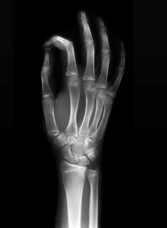 arthritic: OK sign on x-ray black and white film