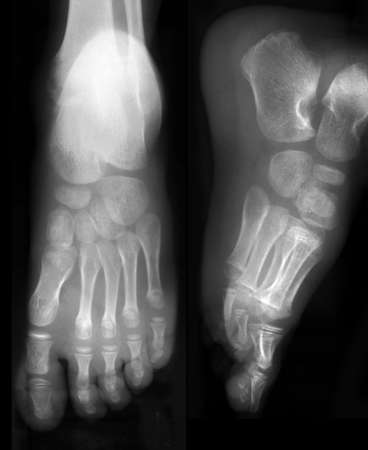 arthritic: Front and side view of foots on x-ray film
