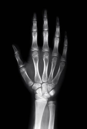 X ray image of human hand