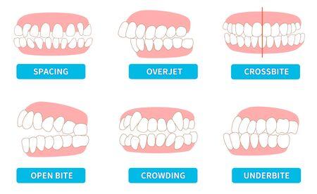 priebus illustrations; crowding, opposite occlusion, open bite, maxillary anterior protrusion, cavities, dentition, crossbite