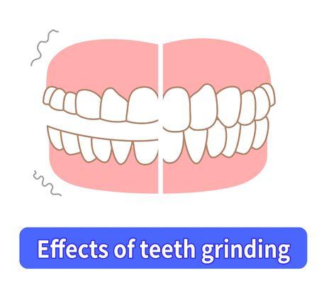 Teeth wear and TCH stress temporomandibular disorders