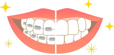 Tooth alignment Dental care Before orthodontic treatment After treatment