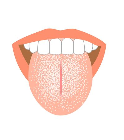 Illustration of tongue symptoms and health 版權商用圖片