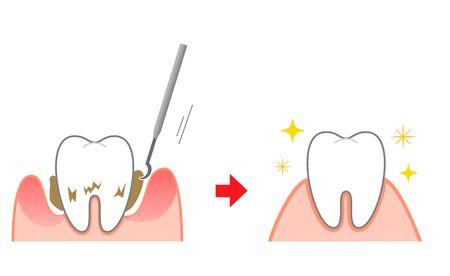 Periodontal disease bleeding toothpaste
