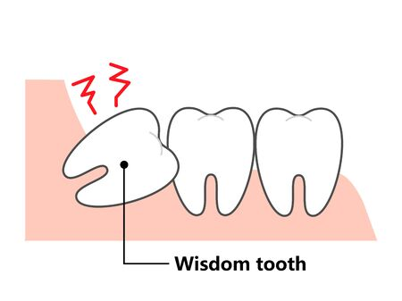 Wisdom tooth and alignment orthodontic Vettoriali