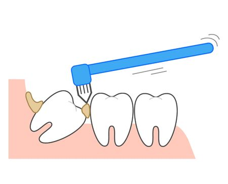single-tuft toothbrush to remove leftover food Vettoriali