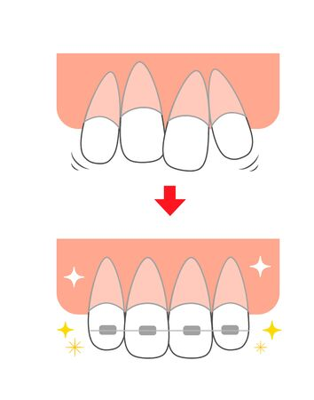 Straightening rattling teeth Front teeth orthodontic