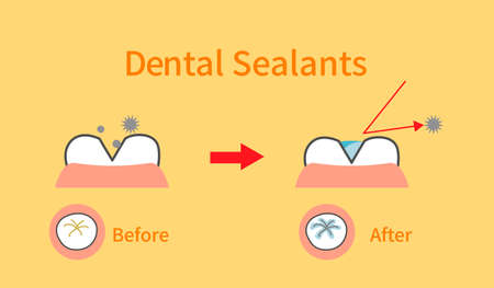 illustrations of dental sealants treatment before after