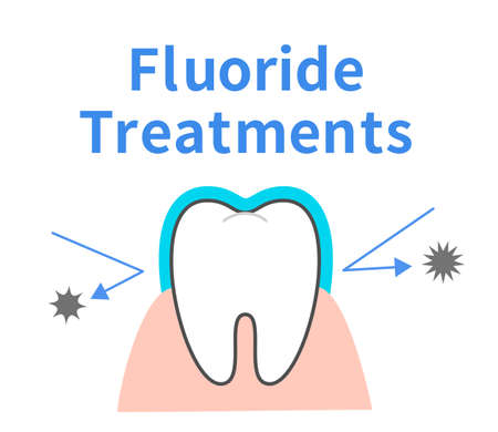 Effect of fluorine treatment Toothed character Dental illustration