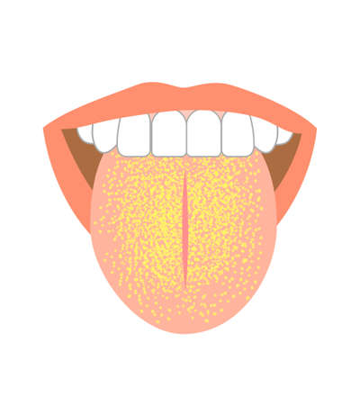 Healthy tongue trouble symptoms on tongue 版權商用圖片 - 160651881
