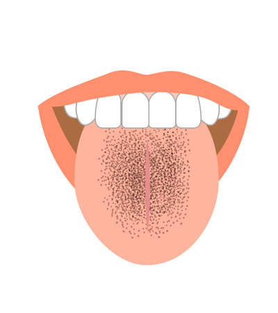 Healthy tongue trouble symptoms on tongue 向量圖像