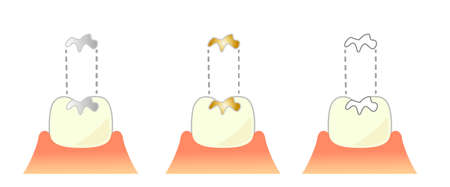 Dental Inlay Caries and Progression and Treatment: Dental Illustration 向量圖像