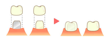 Crown Caries and Progression and Treatment: Dental Illustration 向量圖像