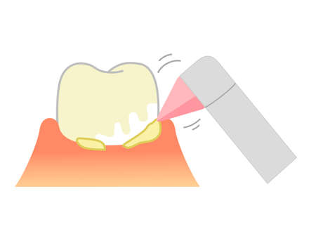 PMTC:Professional Mechanical Tooth Cleaning  Dental Illustration