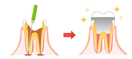 Caries and Progression and Treatment: Dental Illustration 向量圖像