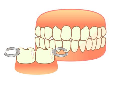 Denture Illustration Set: Denture Illustration