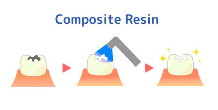 Illustration of composite resin CR adhesive restoration method