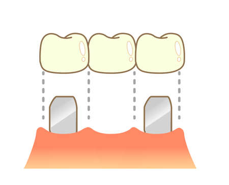 Bridge Caries and Progression and Treatment: Dental Illustration