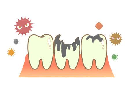 Periodontal disease bleeding toothpaste  illustrations 向量圖像