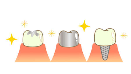 Implant Caries and Progression and Treatment: Dental Illustration