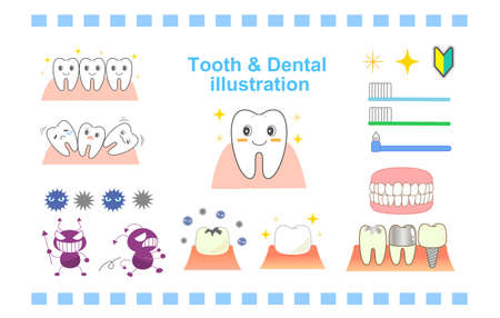 Dental character set implant periodontal disease, etc.