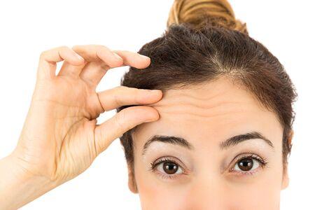 arrugas: Arrugas en la frente femenina Foto de archivo