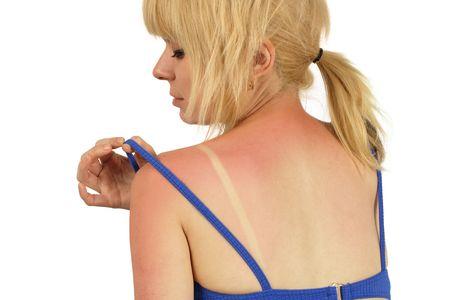 quemadura: Mujer rubia con una mala quemadura de sol en la espalda.