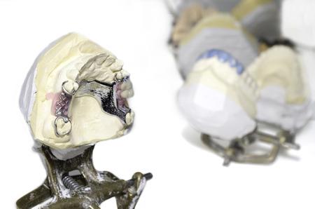 laboratorio dental: coronas de cer�mica en el laboratorio dental Foto de archivo